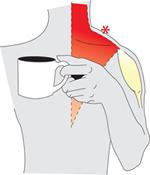 RSI, rugklachten, nekklachten schouderklachten, koude handen